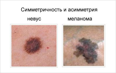 симптомы меланома кожи фото